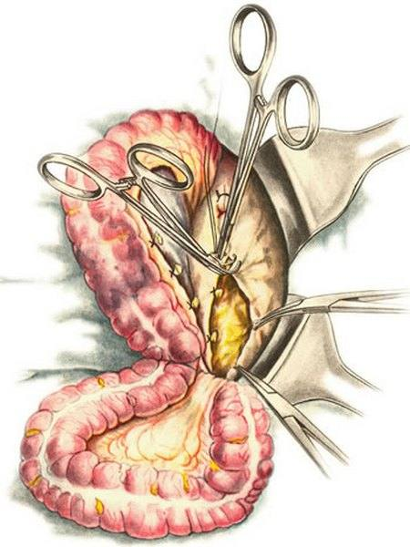 Полип сигмовидной кишки сигмы на ножке - симптомы