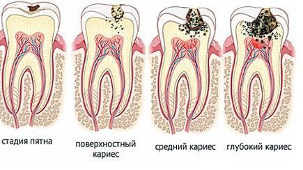 Лечение кариеса - Стоматологическая клиника